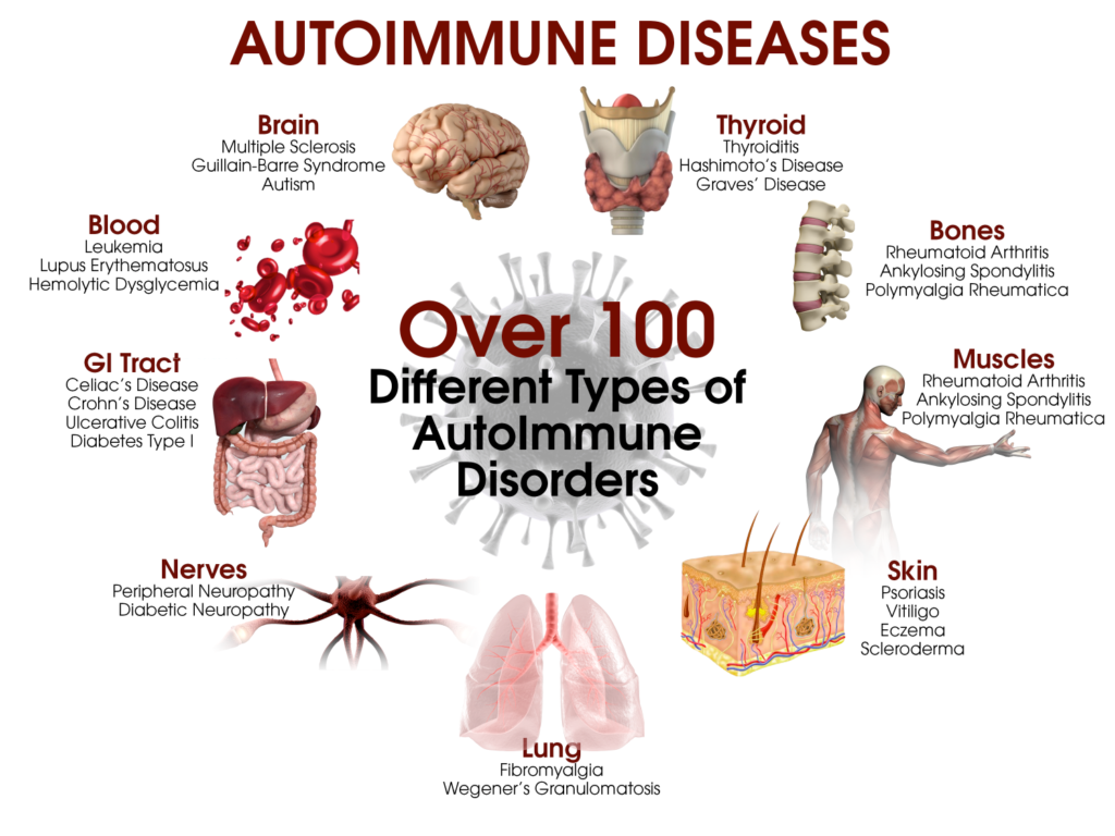 Autoimmune conditions arthritis