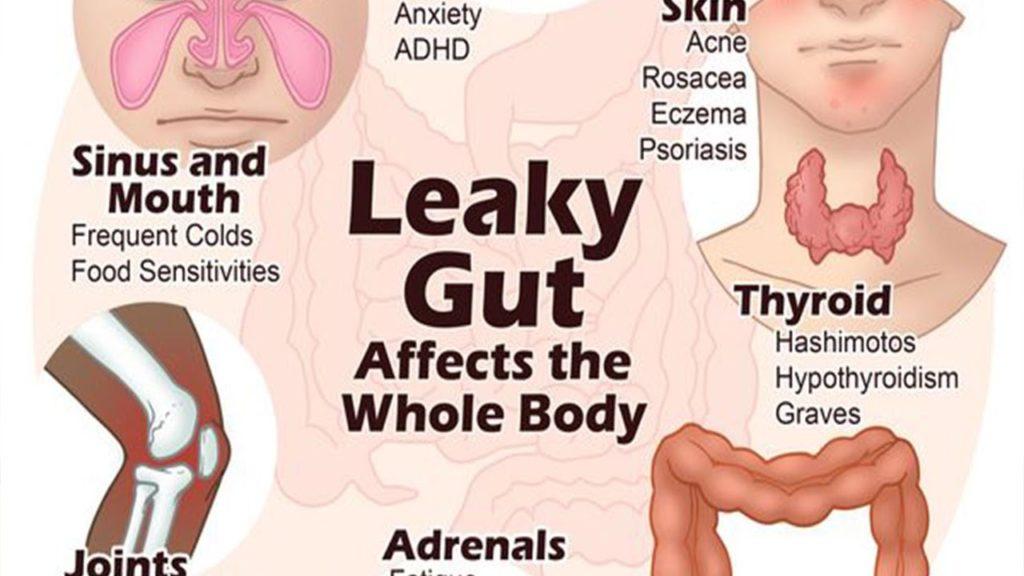 autoimmune leaky gut